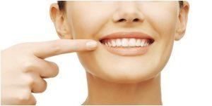 3 Kebiasaan Ringan Sebagai Penyebab Gigi Rusak Yang Harus Diwaspadai!