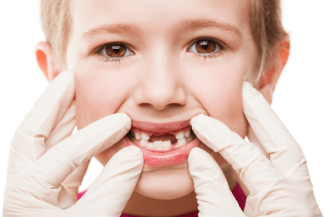 gigi anak 2