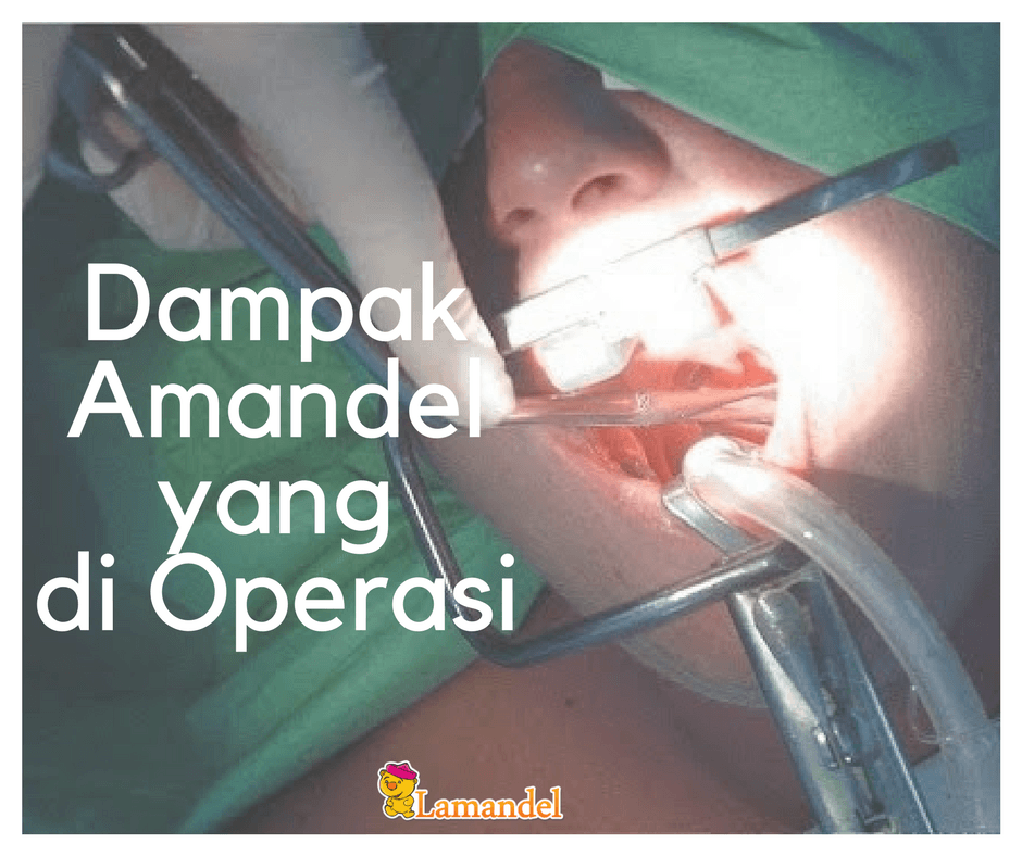 operasi amandel, dampak operasi amandel, obat amandel, amandel bengkak