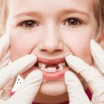 Gigi si kecil berantakan? Mungkin karena dia sering melakukan ini