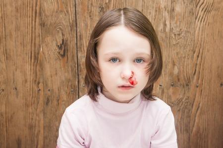 Jika anak sedang mimisan, jangan panik! Lakukan ini